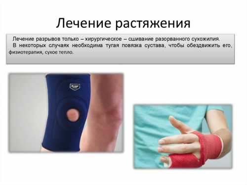 Лечение растяжения мышц  в домашних условиях: