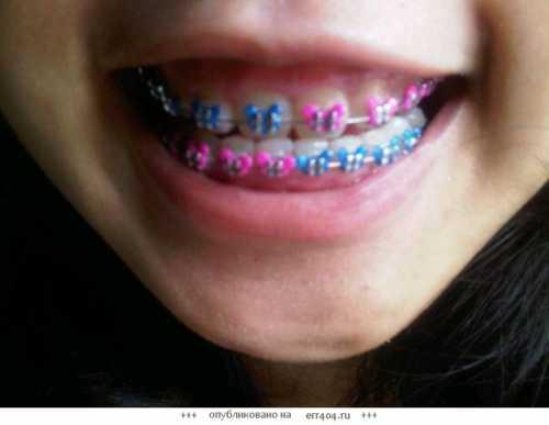 Знаменитые голливудские улыбки, белоснежные, во все зуба
