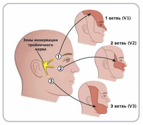 Воспаление тройничного нерва: симптомы, причины,