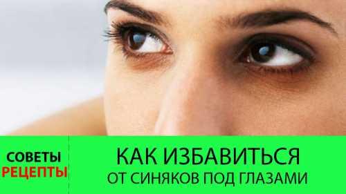 Избавляемся от синяков под глазами