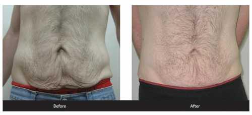 Улучшаем состояние кожи после похудения
