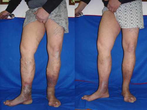 Гормональные перестройки, особенно у женщин, очень часто становятся причиной варикозной болезни нижних конечностей