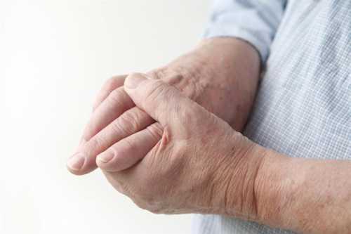 Этому обычно предшествует ярко выраженная боль, воспаления и опухоли в суставах