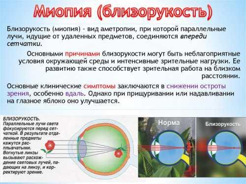 Миопия близорукость