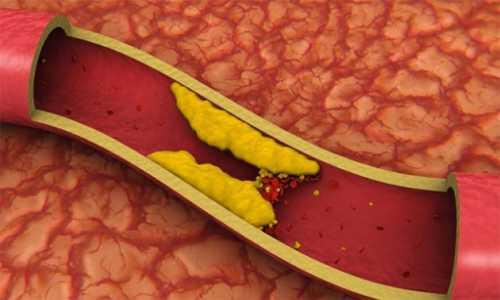Вот как очистить кровеносные сосуды от холестерина всего за 40 дней