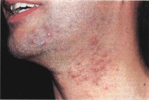 Больному нельзя разговаривать или как нибудь иначе напрягать лицевые мышцы